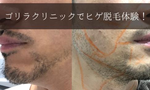 ゴリラクリニック髭脱毛